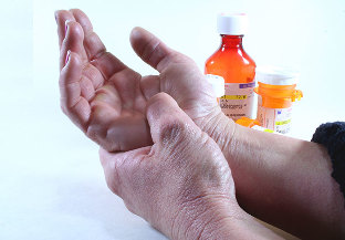Artriit voi artrosi seniv Salv liigeste Flexin