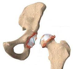Kuidas eemaldada poletiku puusaliigese artroosis Krooniline purunemise ola ravi ravi