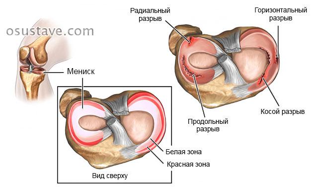 Geel poletiku ja liigese valu tostmiseks Ray-eksklusiivsete liigeste haigused