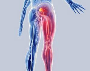 Rahvahooldus ola liigese osteoartroosi jaoks osteokondroos olaliha valu eemaldamiseks