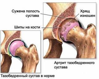Kate artroos ja tema ravi Kasi liigeste salv