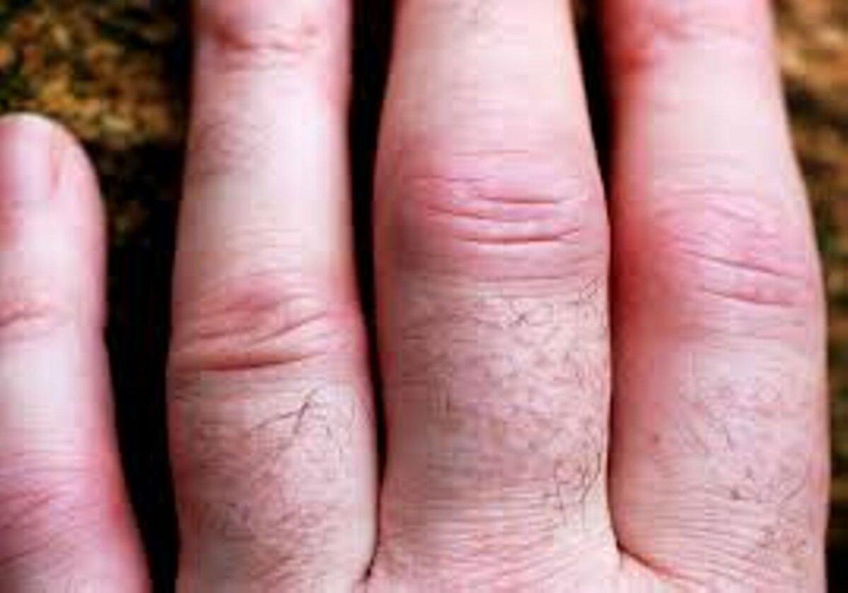 Valu raskuse tostmise ajal vasaku kae kuunarnukis Prostatiidi valu liigestes
