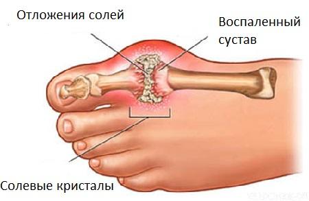 Osteokondroosi kreem voi salv Raskeoede liigeste ravi