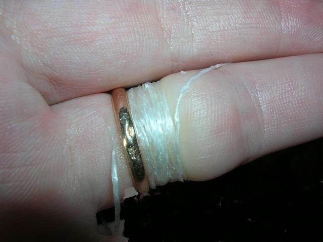 Kuidas eemaldada turse sormest Ivenkers liigeste palavik
