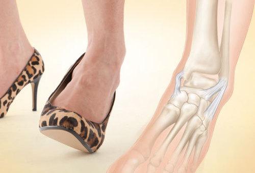 Kuidas ravida liigeste ja jalgade valu