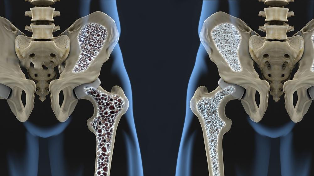 Poidla vasaku harjade artriit