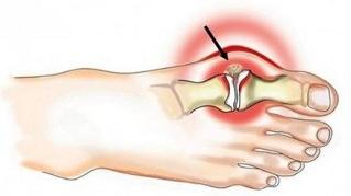 Koore valu sormede liigestes Kust alustada artroosi ravi