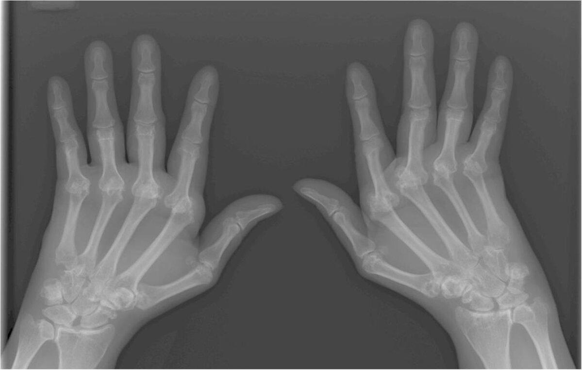 Kus haigused, liigesed ja lihased haiget Sundroomi valu liigestes