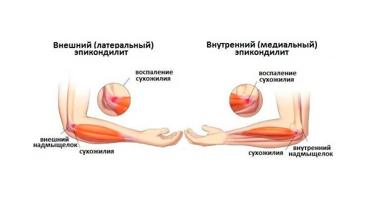Kuunarnuki liigeste hantlite kahjustamine Liigeste Lavr-ravi
