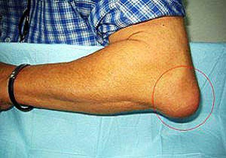 Liigeste haiguste moiste Kui uhine valus ja klopsake