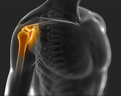 Ladina ola liigeste artroos Tooriistad kate liigeste valu