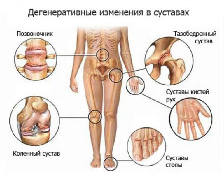 Kui kuunarli liigese artroosi toodeldakse