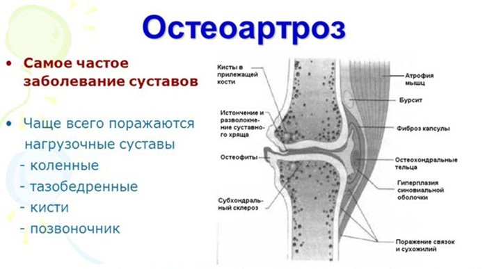 Liigeste liigeste haigused Pusiv valu kreem