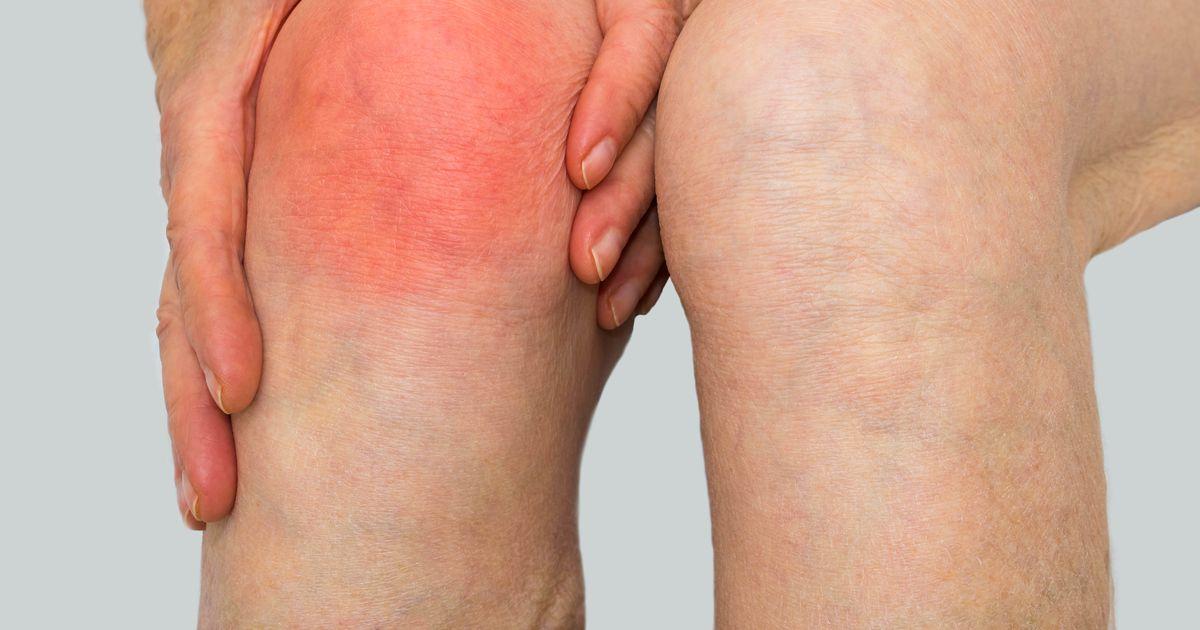 Artroosi uhisel, kuidas maarata haiget koik liigeste ravi kui