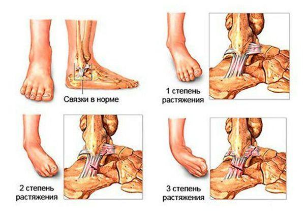 Mida teha, kui liigend on jalaga haiget