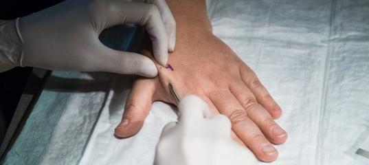 Naita uhist ravi Osteokondrosroosi ravi Mazi tableti