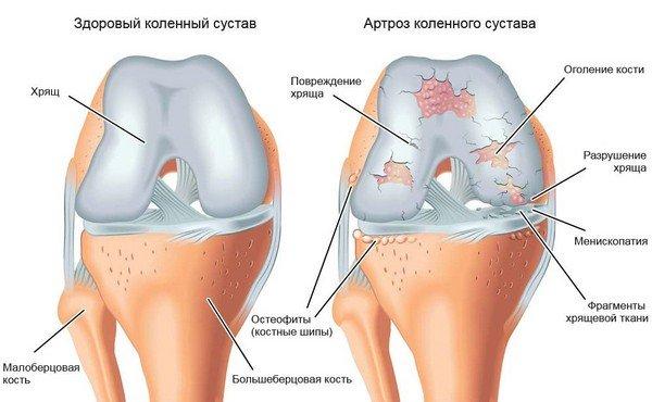 Narvilised haigused liigeste
