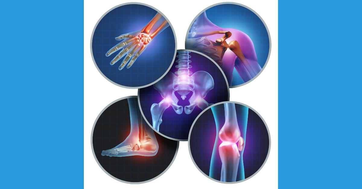 Raskeoede liigeste ravi valutab vasakpoolse suure sormega liigese