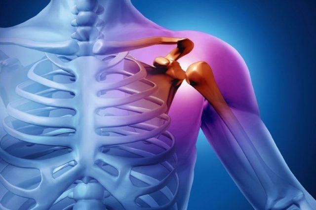 Osteokondroos parema ola liigese