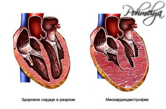 Nao liigese artroos