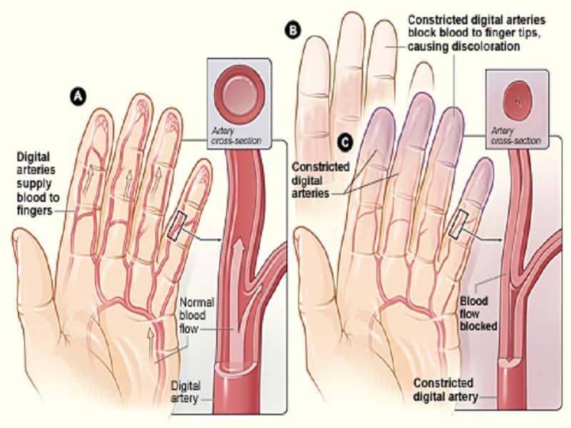 Liigeste ola liigeste artriidi ravi
