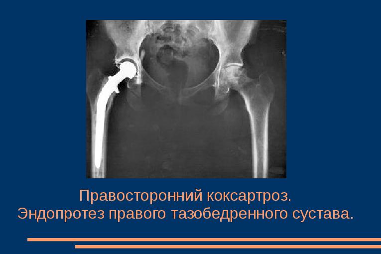 Puusaliigese valu on jala kui raviks