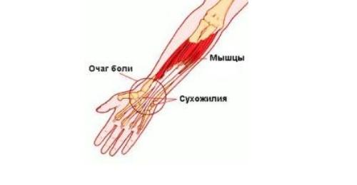 Eemaldage jala liigeste poletik Liigeste ravi Krasnodari