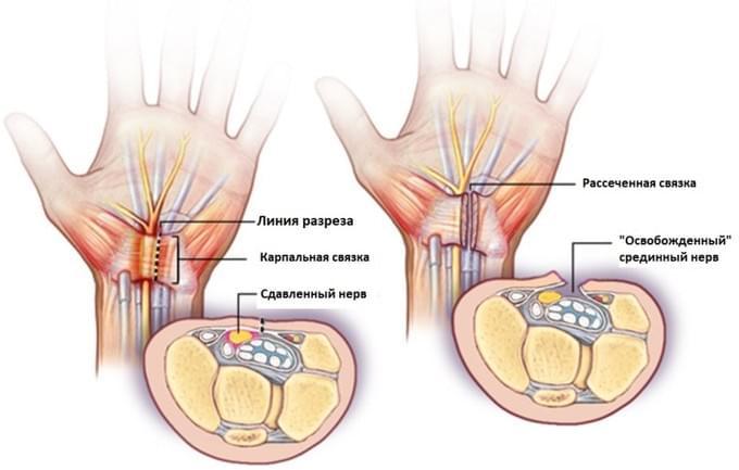 Snain Balsami luud ja uhendused ostavad apteegis Suurte liigeste artroos, mis see on