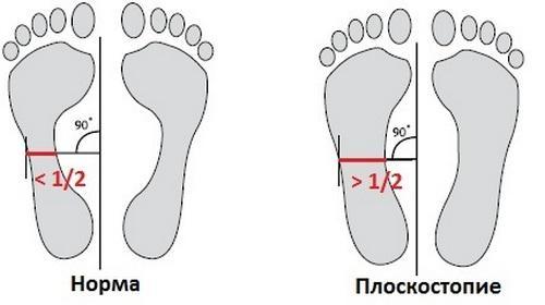 Ravi arthrome jalg
