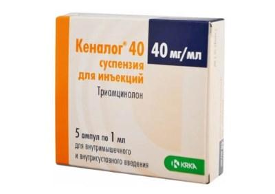 Ravi artroosis