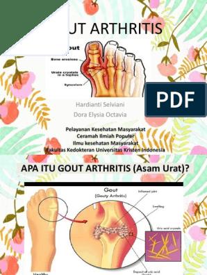 Ravi ola liigese 3 kraadi artroosiga Mida teha, kui kateharja liigesed kulvavad