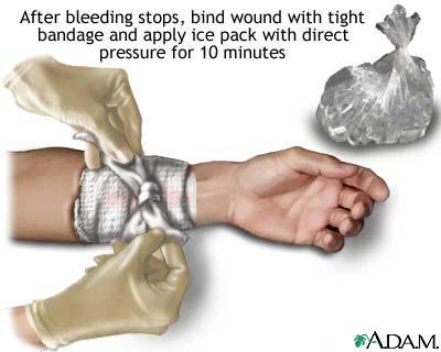 Reie verejooks vigastused