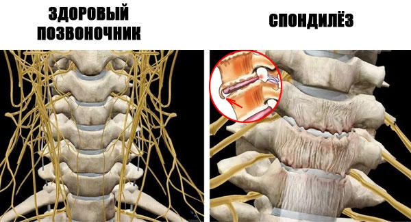 Rheumatoidartriidi liigesed harjad