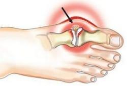 Sellest, mida poidla liigese valutab Artriit Mis on sinu sormed
