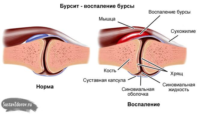 Hoorele ravi pohjuste sormede valus Mida parem ravida valu liigestes