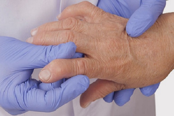 Sormede liigeste artroos ja artriit