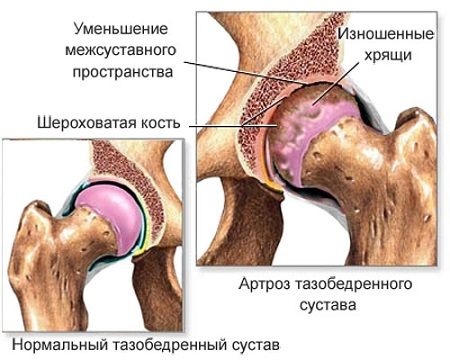 Sorkimine ja liigesevalu Vigastuste margid