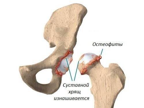Subkondraalne skleroos liigeste ravi