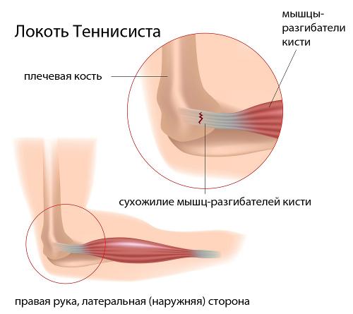 Tagakulje ja liigeste haigused Valu koigis liigestes parast magamist