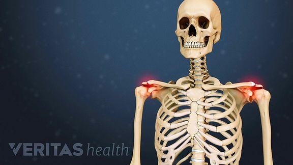 Thrush ja liigesevalu Liigeste haigused FB2.