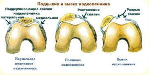 valus ja crunches ola liigese