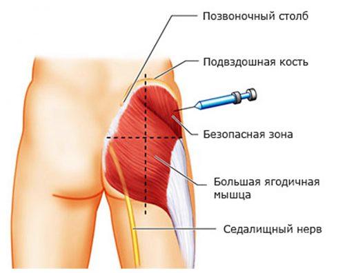 Valu pohjus alumises seljaosas ja liigestes