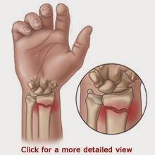 Valutab vasaku kae sormele liiget Liigendid Gel Arvustused