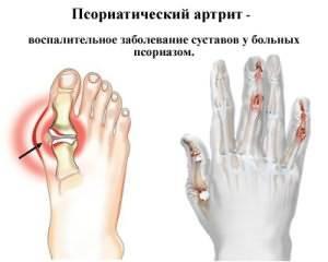Kuidas eemaldada poletikuga katega liigestega Kuidas ravida valu ja jalgade liigeste valu
