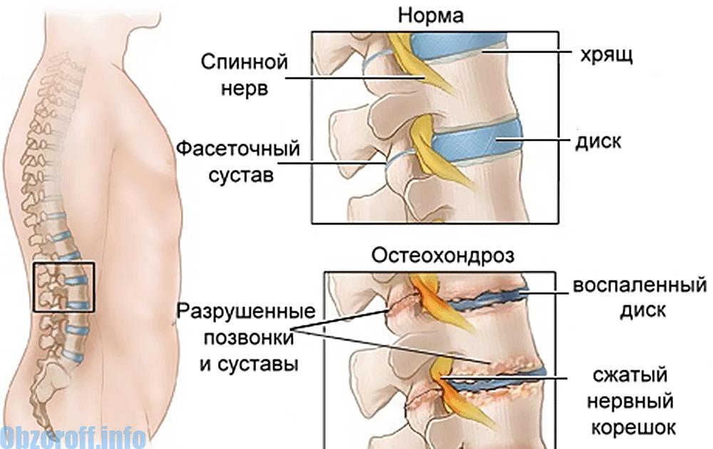 Kuidas ravida kate ja jalgade liigeste valu Osteopaatia liigeste ravi