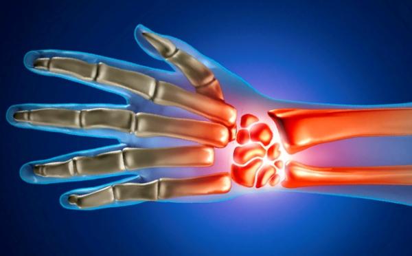Artriidi liigeste harja kate pohjused