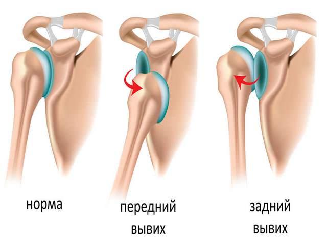 Liigeste ravi prednisoloon