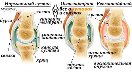 valus liigesed parast tootamist kui maarduda Valu puusaliigendis on jala kui valu raviks
