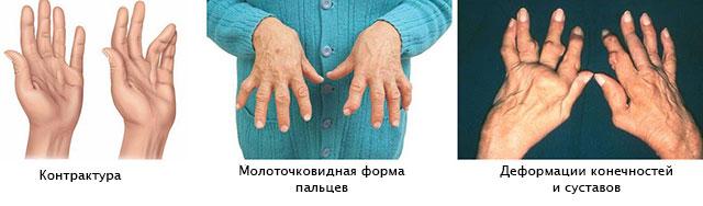 Tabletid artriidi kasiharjadest Valu kate sormede liigestes, mida teha