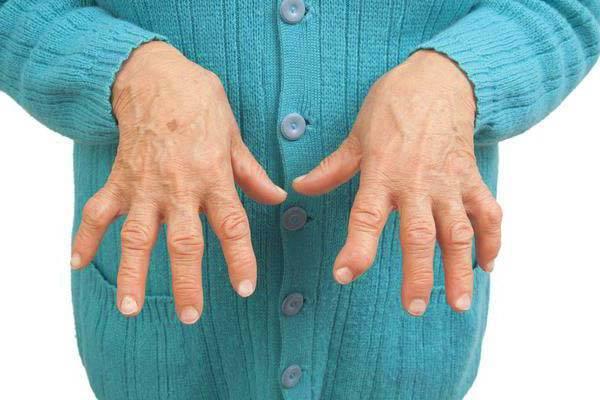 Trichopoli liigeste raviks Milline ravi ola liigese artroosiga